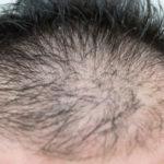 プロペシアで薄毛の人のヘアサイクルはこう変わる